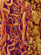 Blood vessels in the small intestine, SEM