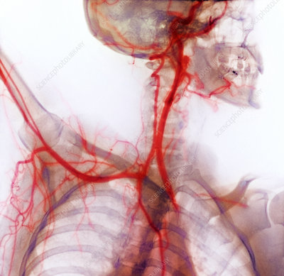 Neck and shoulder arteries, X-ray