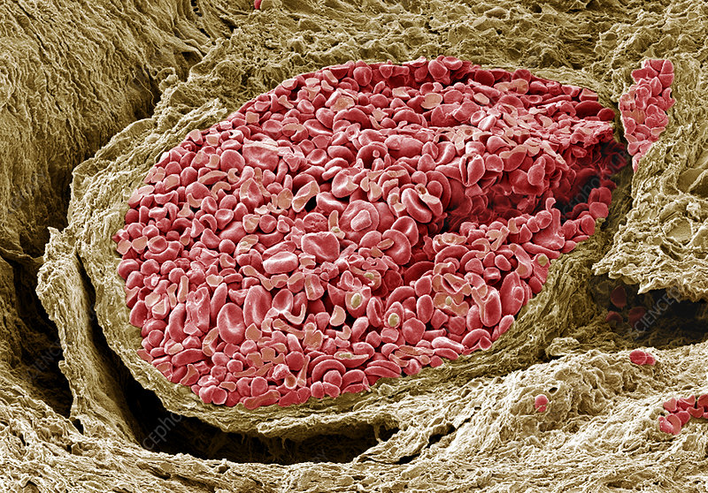 Foetal blood vessel, SEM