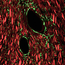 Brain blood vessels, light micrograph