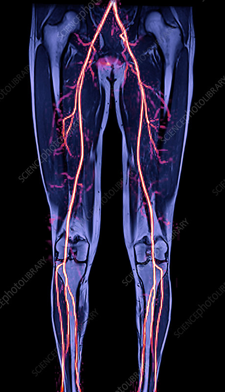 Leg arteries, MRI scan