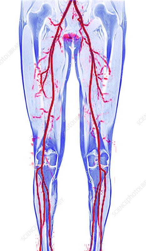 Leg arteries, MRI scan - Stock Image P206/0435 - Science Photo Library