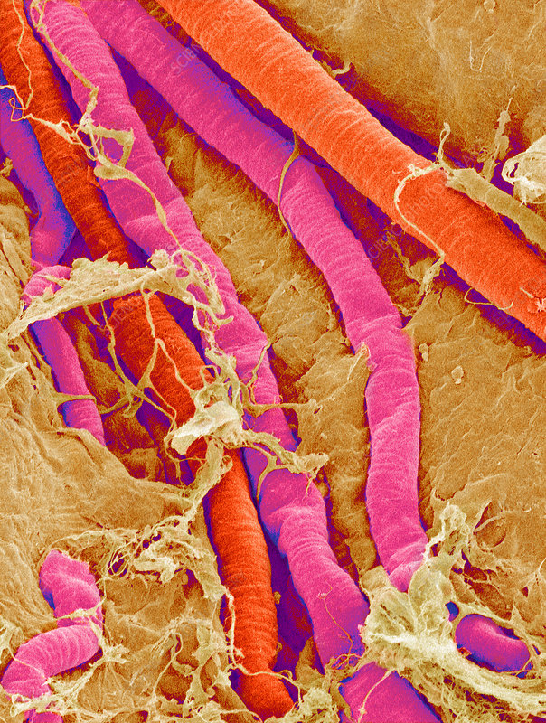 Brain blood vessels, SEM