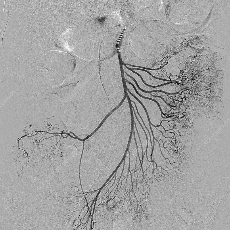 Abdominal blood vessels, X-ray
