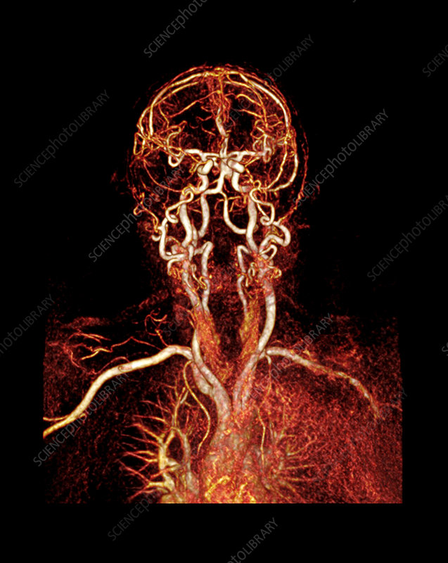 Head and neck arteries, CT scan