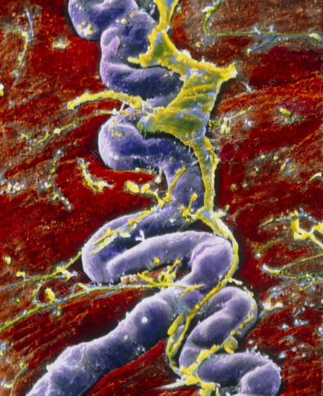 False-colour SEM of pericyte capillary on muscle