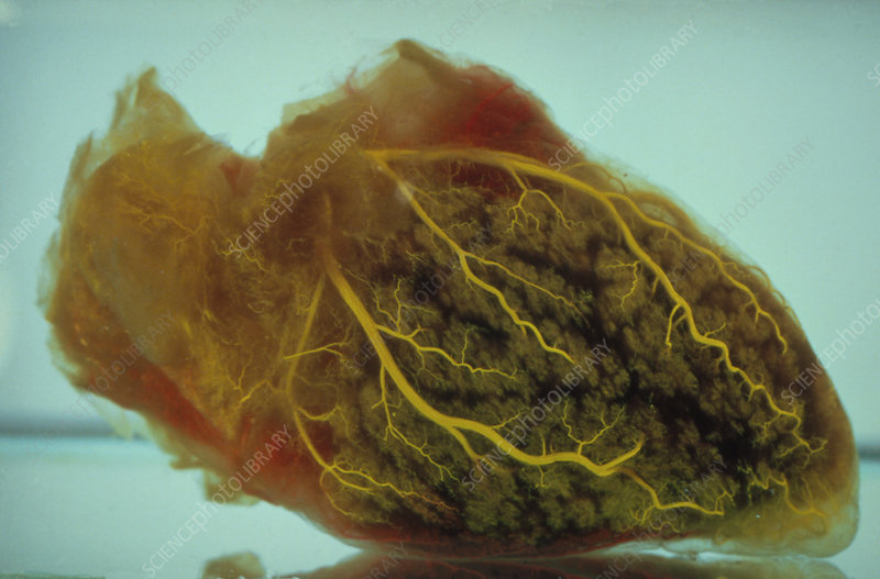 Specimen of the human heart