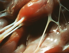 Macrophoto of tendon from a human heart ventricle