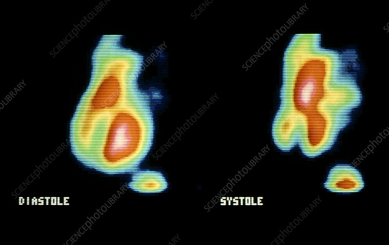 Gamma scan of the heart during diastole & systole