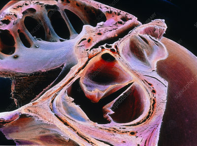 False-colour SEM of the aortic valve