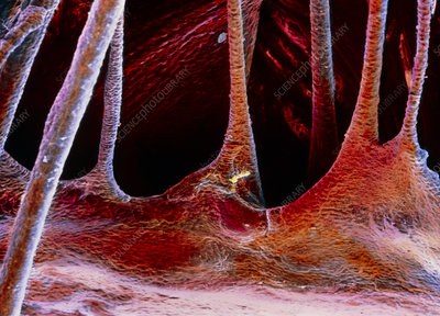 False-colour SEM of a portion of a cardiac valve