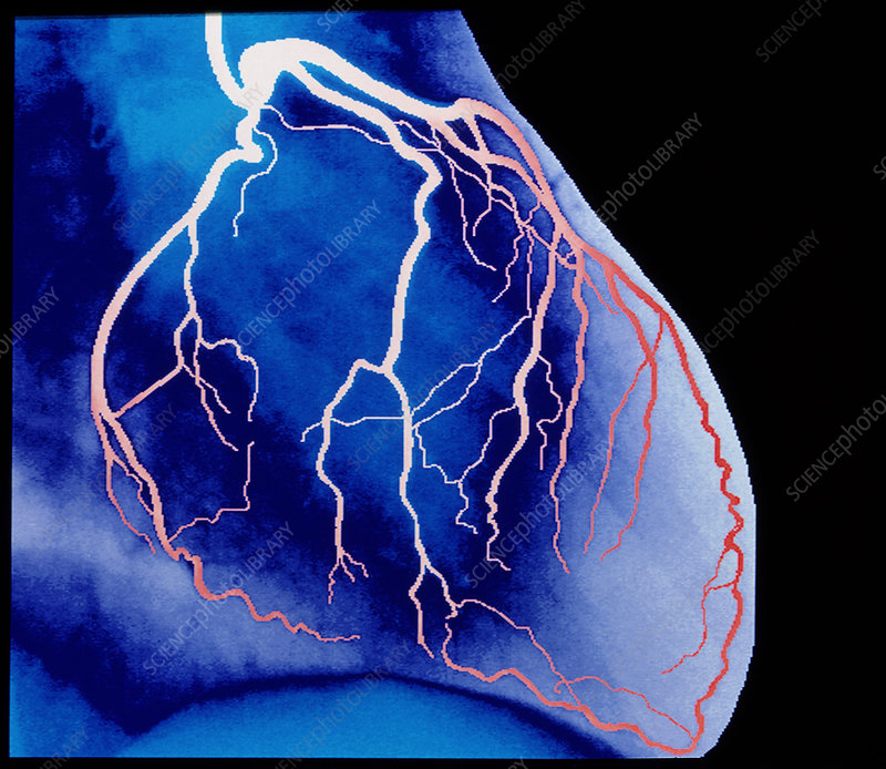 False-colour X-ray of normal heart