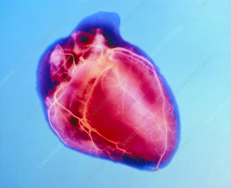 False-colour X-ray of a normal human heart