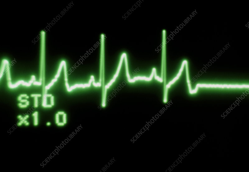ECG trace of a normal heartbeat to a flat line