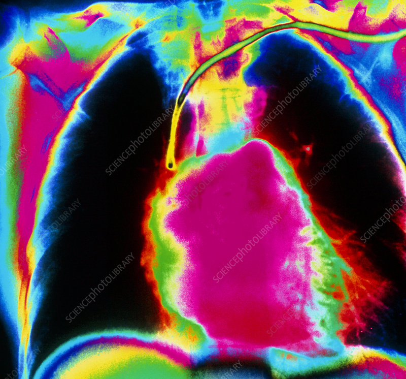 Coloured pulmonary angiogram showing healthy heart