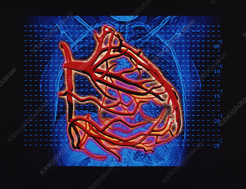 Computer artwork of blood supply to the heart