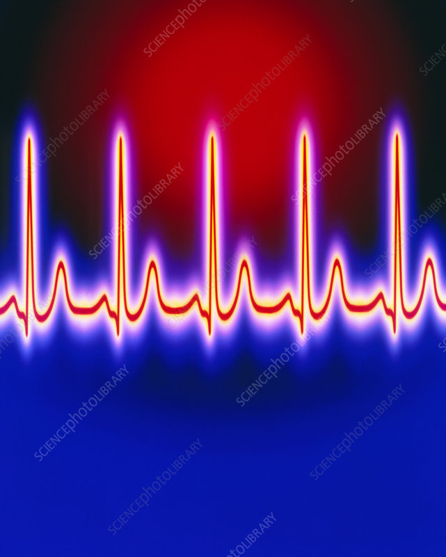 Computer artwork of healthy ECG trace of the heart