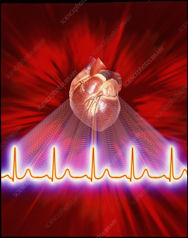 Artwork of an ECG heart trace and a healthy heart