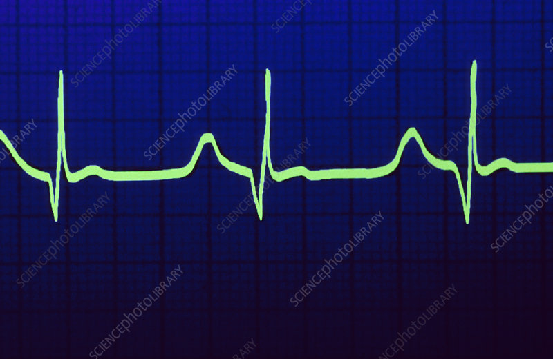 ECG trace of a healthy heartbeat