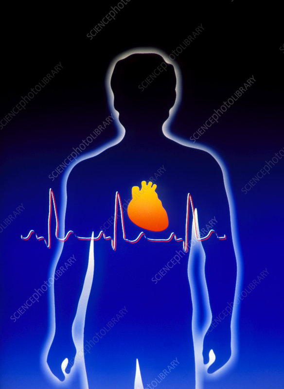 Artwork of human figure with heart and ECG trace