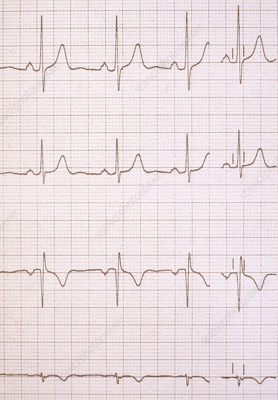 ECG traces of a healthy heartbeat