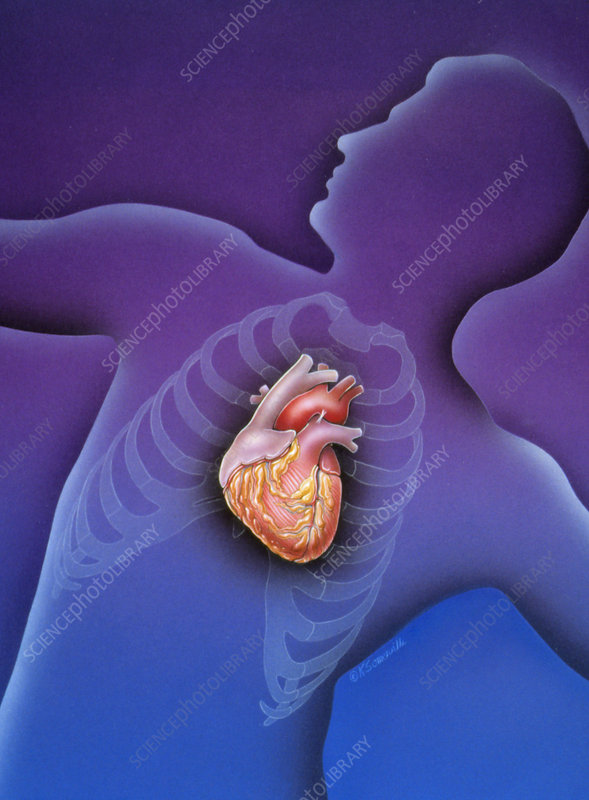 Artwork of a male torso showing a healthy heart