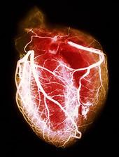 توانبخشی قلبی