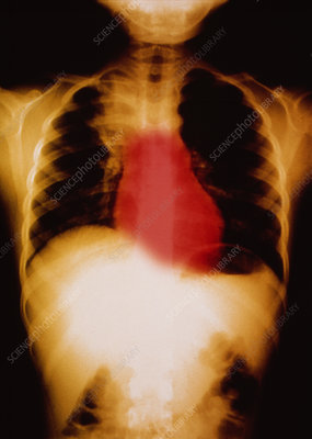 Heart in chest, X-ray