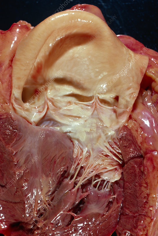 Aortic valve of the heart