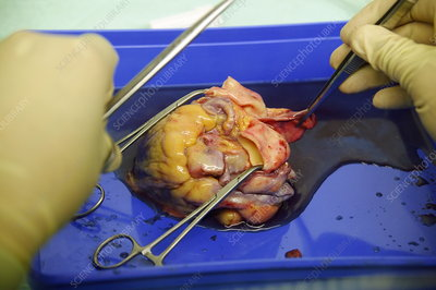 Heart being prepared for dissection