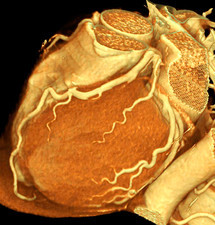Heart, 3D CT scan