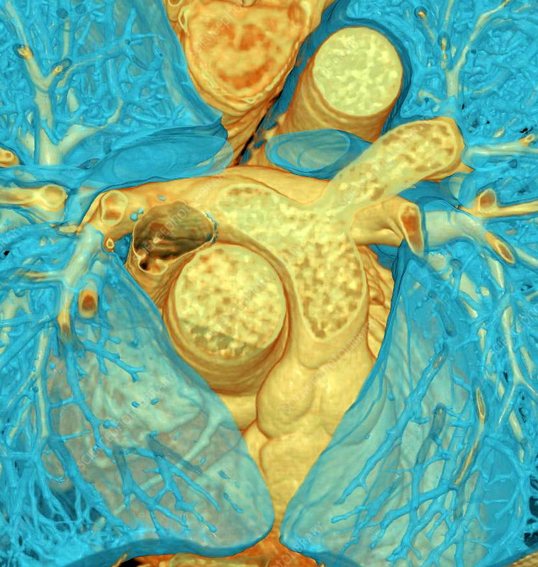 Heart blood vessels, 3D CT scan