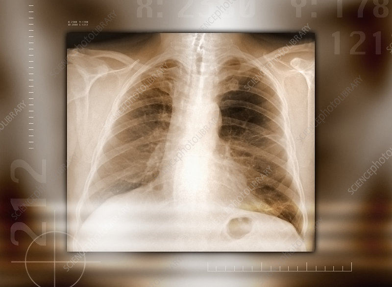 Heart and lungs, X-ray