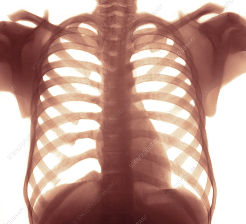 Chest X-ray of a healhty human heart