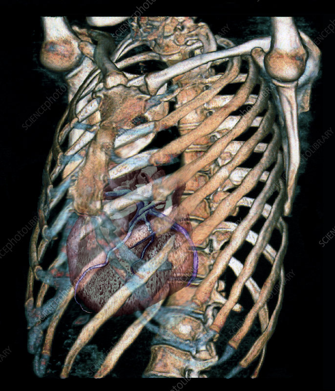 Heart and rib cage, 3D CT scan