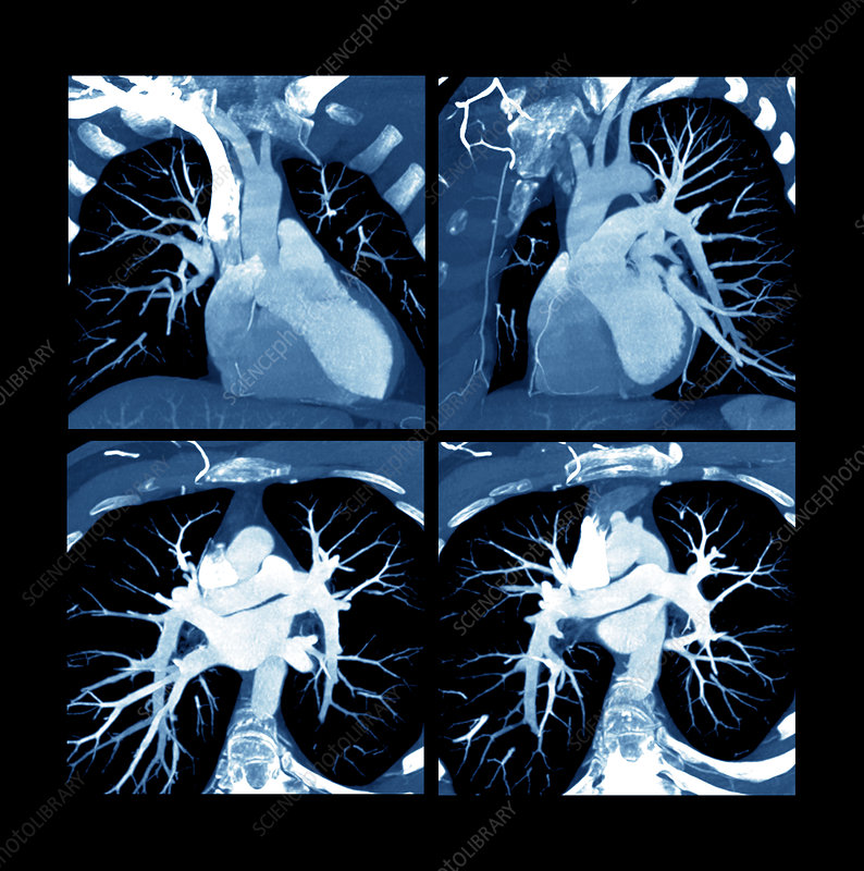 Heart, CT scan