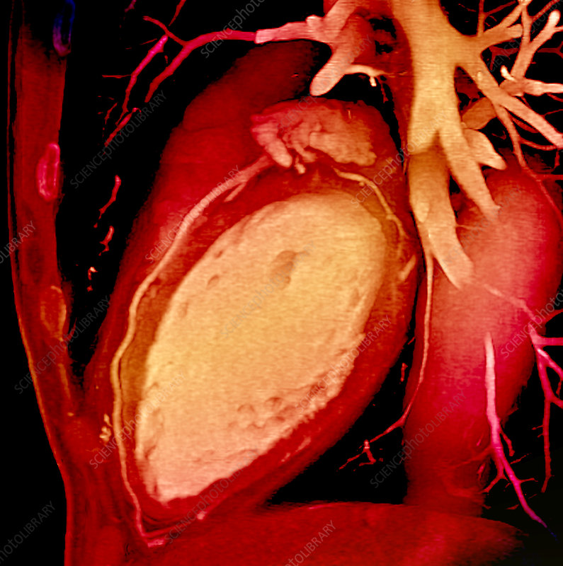 Heart and coronary arteries, 3D CT scan - Stock Image ...