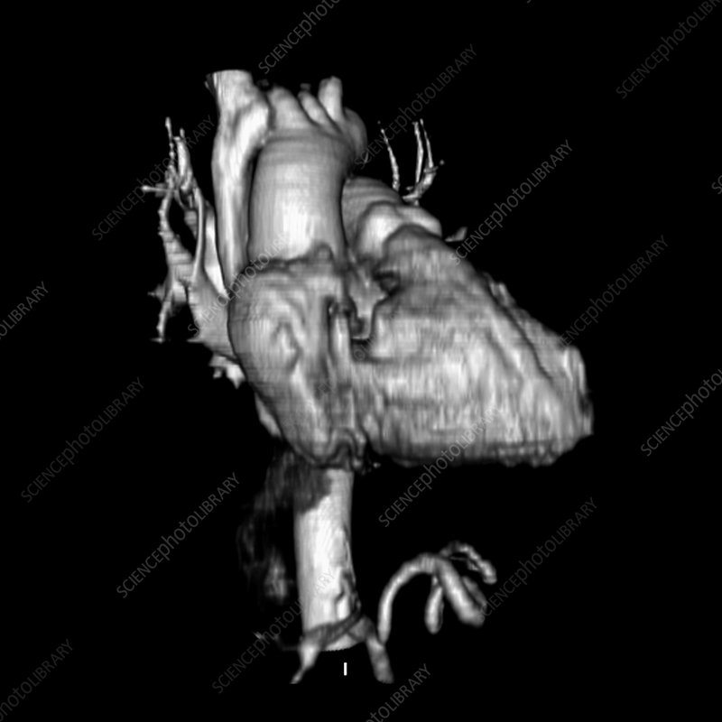 3D CTA of Heart