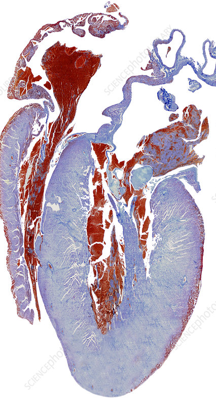 Dissected heart, light micrograph