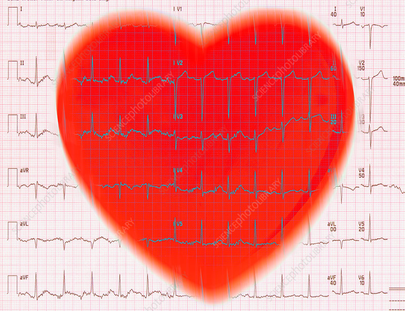Heart and EKG Reading