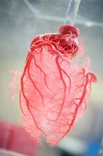 Resin cast of heart blood vessels
