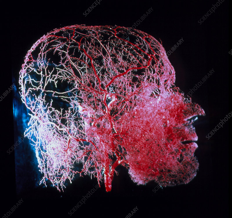Resin cast of blood vessels in the head