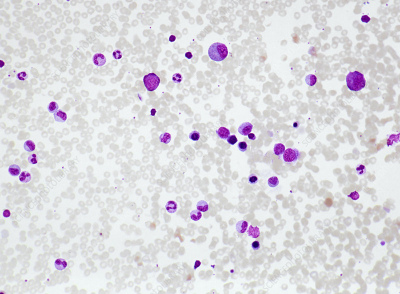 Human Bone Marrow Smear