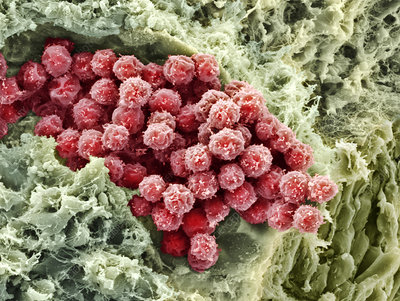 Foetal blood stem cells, SEM