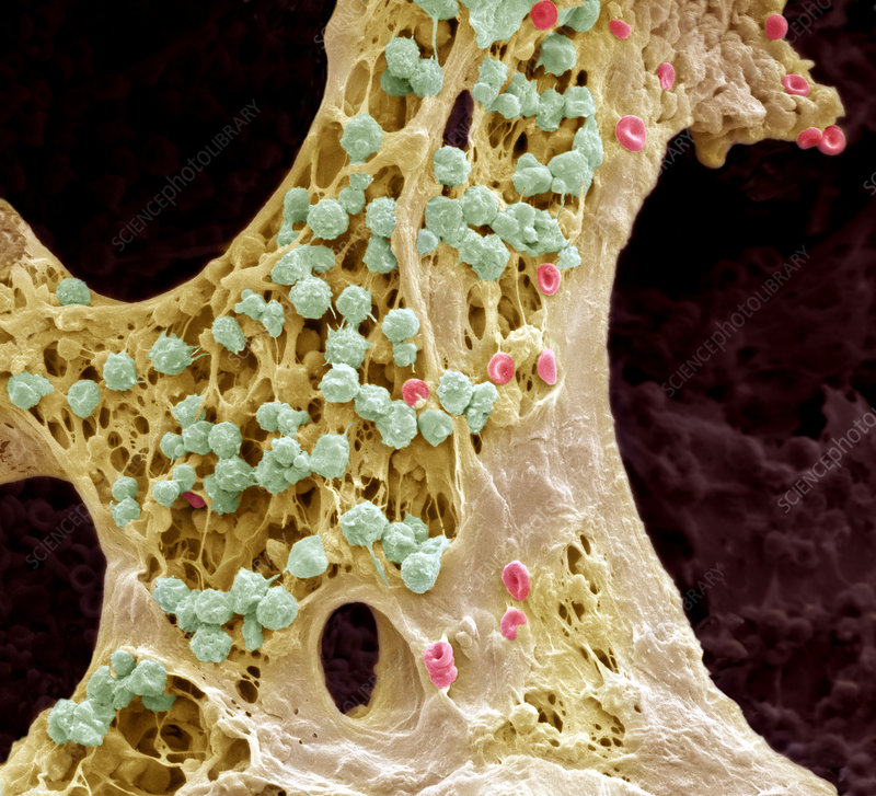 Bone marrow, SEM