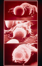 Sequence of SEMs: macrophage engulfing erythrocyte