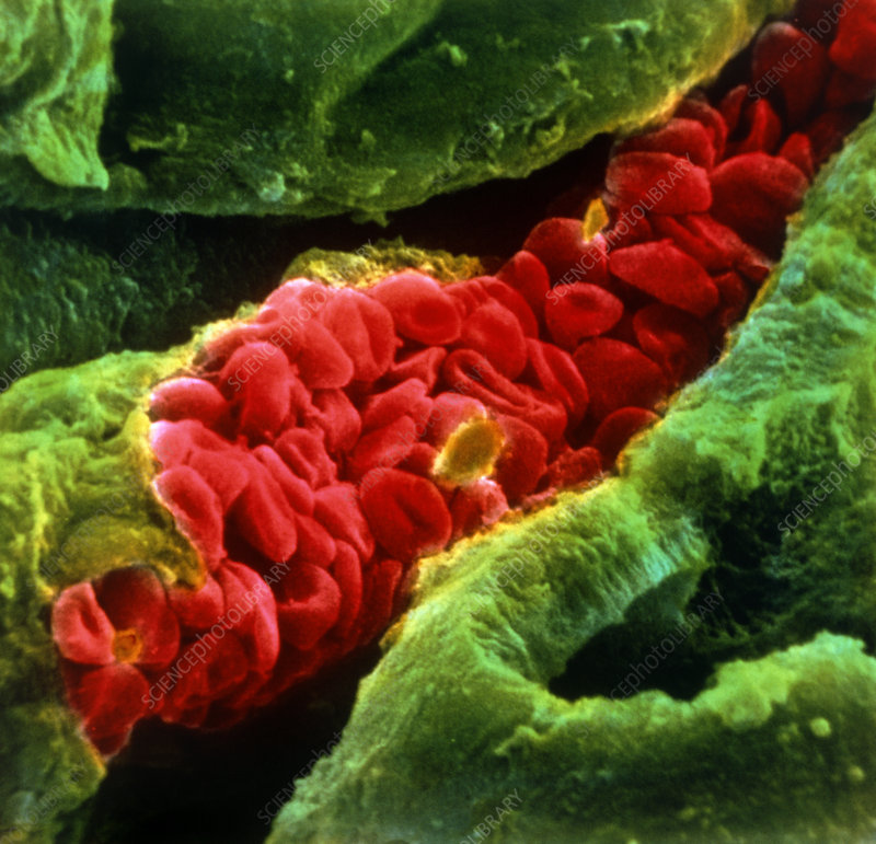 False-colour SEM of red blood cells in capillary