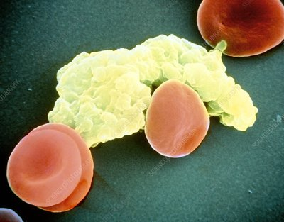 False colour SEM showing red & white blood cells.