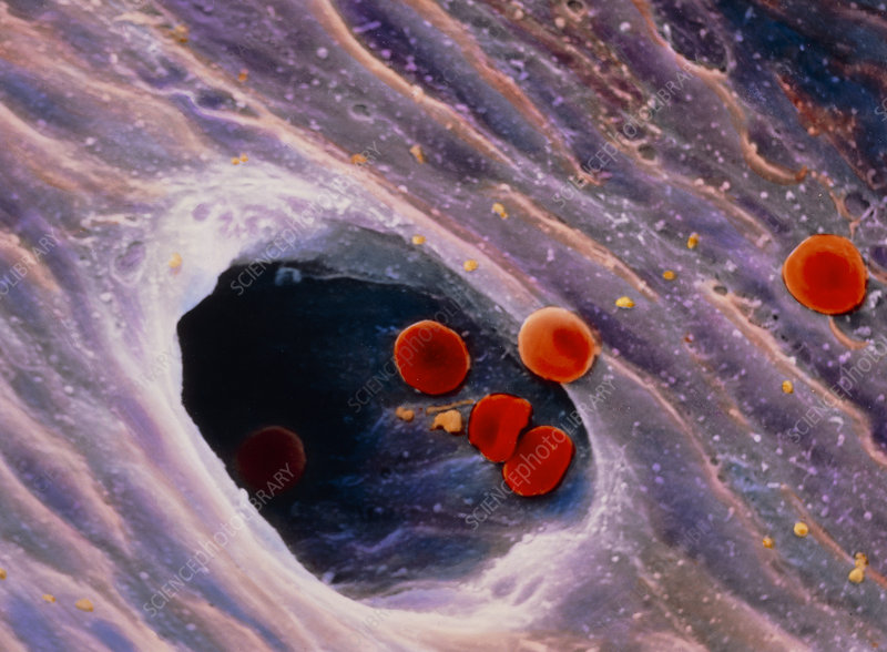 Coloured SEM of red blood cells in blood vessel