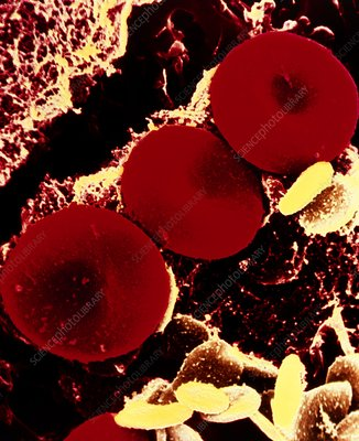Coloured SEM of 3 human red blood cells